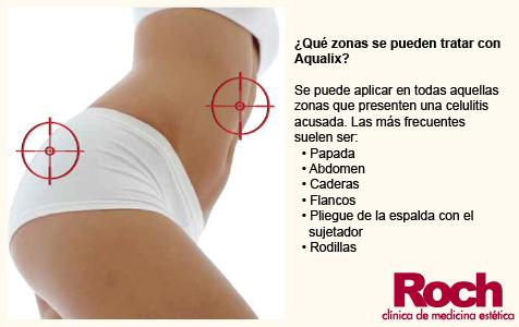 Aqualix-Celulitis-Clinica-Roch-Sevilla