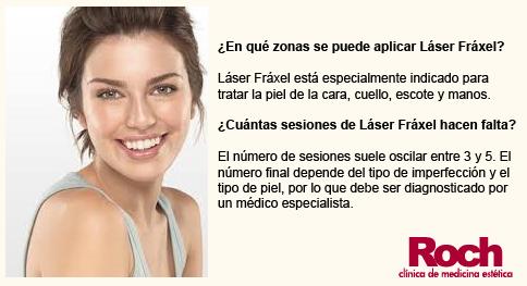 Laser-Fraxel-Sevilla-Clinica-Roch-2